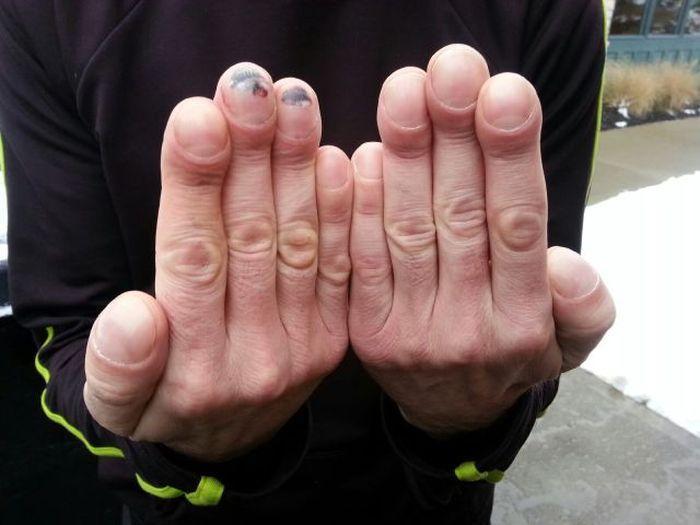 palce paleczkowate